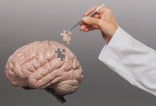 Photo of Los 10 alimentos que ayudan a prevenir el deterioro cognitivo